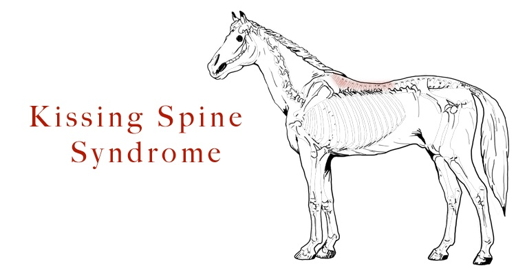 Zdrowie: Kissing Spine Syndrome